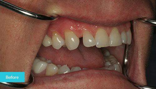 Dental Bonding Before 1