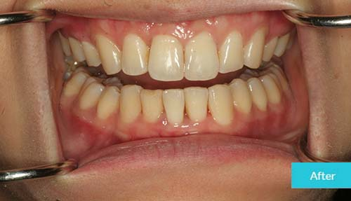 Invisalign After Case 15 - Dental Clinic London