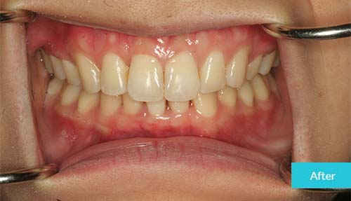 Invisalign After Case 16 - Dental Clinic London