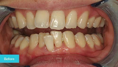 Invisalign Before Case 3 - Dental Clinic London