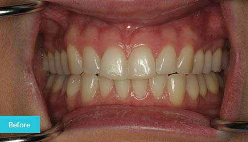 Composite Bonding and Teeth Whitening Before Case - Dental Clinic London
