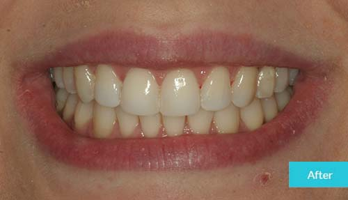Composite Bonding and Teeth Whitening After Case - Dental Clinic London