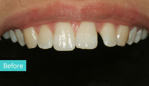Dental Composite Bonding Before