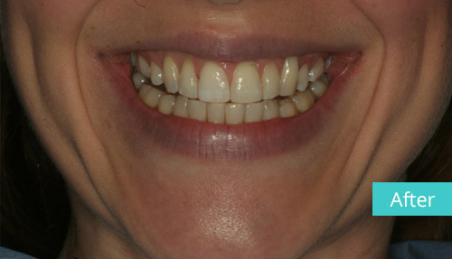 Invisalign Case After