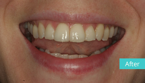 Invisalign case After 3