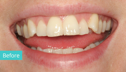Invisalign Case before 3