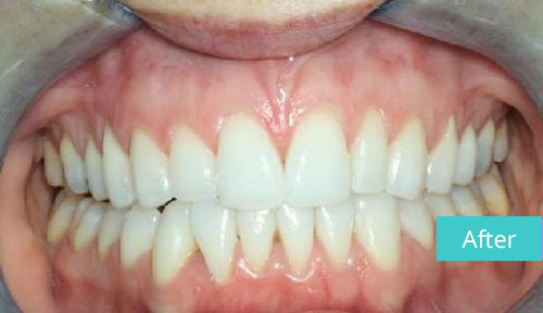 Invisalign Case After 10