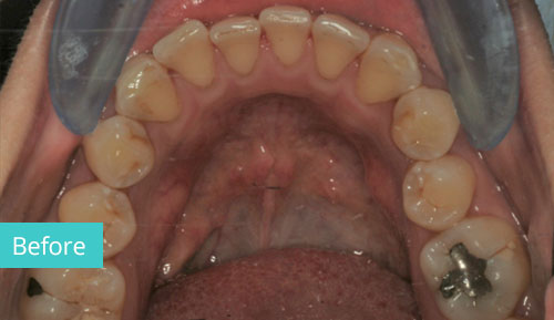 Invisalign Case before 14