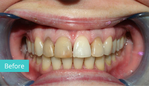 Invisalign Case Before 4