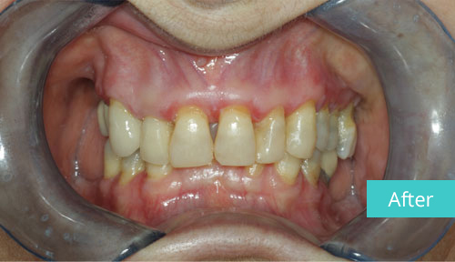 Invisalign case After 12