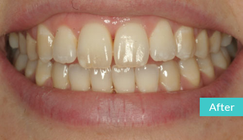 Invisalign Case After 13