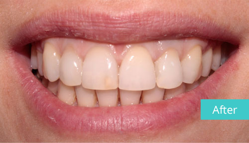 Invisalign case After 4