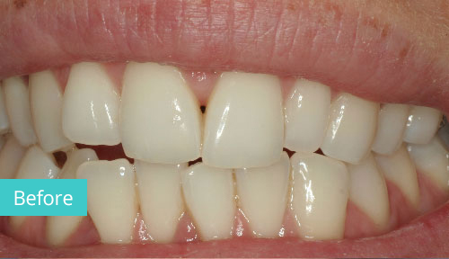 Invisalign Case Before 10