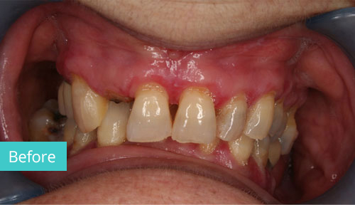 Invisalign Case before 12