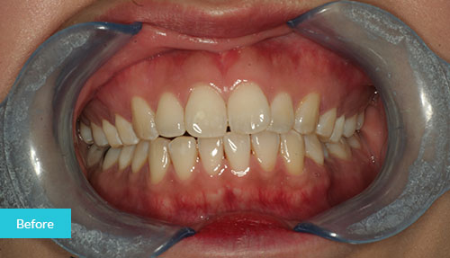 Invisalign Case Before